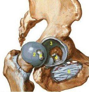 Artrosis de la articulación de la cadera