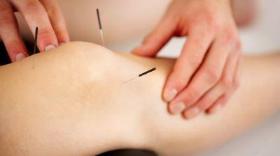 Acupuntura para el dolor de rodilla