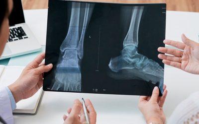 Técnicas quirúrgicas en el pie plano